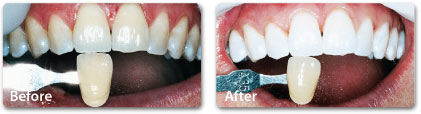 bleaching-teeth-whitening-3